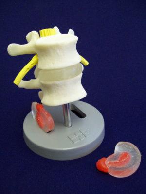 Dissectible lumbar
